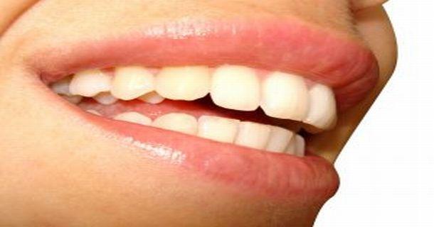 Problem krzywych zębów